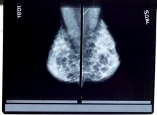 Cancer-du-sein-2