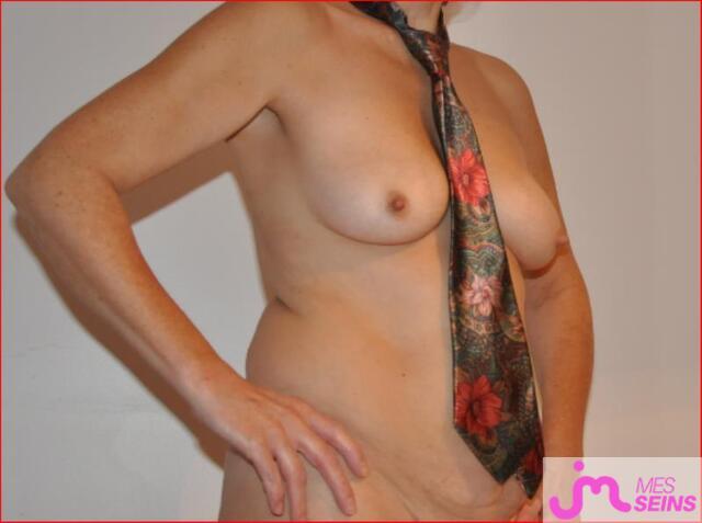 Photo des seins de Dikie