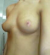Photos des seins de Dolcevita, Moi
